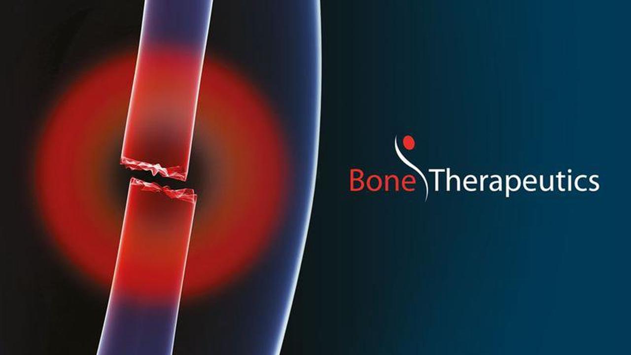 Bone Therapeutics nomme Lieve Creten en qualité de Directeur financier par intérim