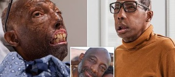 Take A Look At Before And After Photos Of First American To Undergo Face Transplant