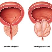 5 warning signs of prostate cancer