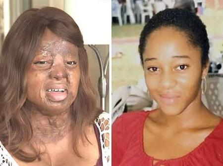 Meet Kechi, One Of The Two Survivors Of The Sosoliso Plane Crash Whose Story Is An Inspiration