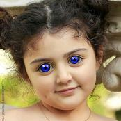 See Photos Of Little Kids Born With Unusual Colored Eyes.
