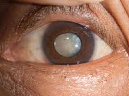 Cataract and Eye Related Diseases