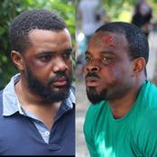Reactions as popular Nollywood actor shares wounded pictures of himself and a colleague.