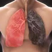 If You Want To Live Long, Stop Taking Too Much Of These 3 Things, They Harm Your Lungs