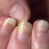 If Your Fingernails Have The Following Characteristics This Is What They Are Warning You About
