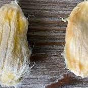 Never Throw Away Mango Seed Again, See 5 Amazing Health Benefits Of Mango Seed