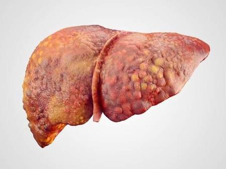 Liver Cancer Kills Fast, Avoid Taking These 3 Things, If You Want To Live Long