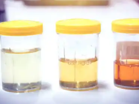If Your Urine Has These Colours, This Is What It Means And Here Is What You Should Do - Doctor.