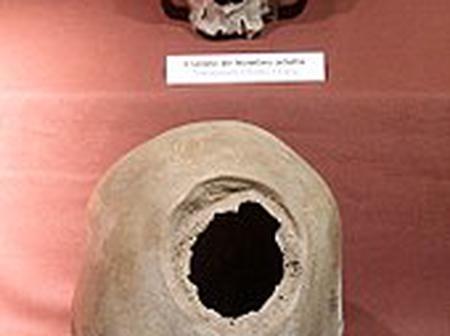 Believe It Or Not Brain Surgery In 600 A.D