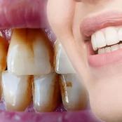 طرق منزلية لـ إزالة البقع البنية من الأسنان وجعلها بيضاء كالثلج