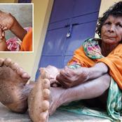 Woman with THIRTY ONE fingers and toes is accused of witchcraft by her neighbours!