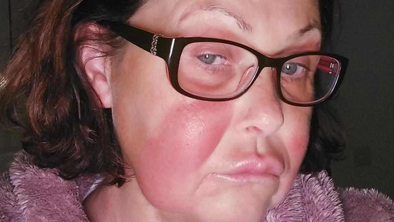 Redruth mum's face mysteriously swells up and she can't see a doctor