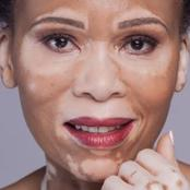 Leleti Khumalo Open Up About Her Skin Condition!