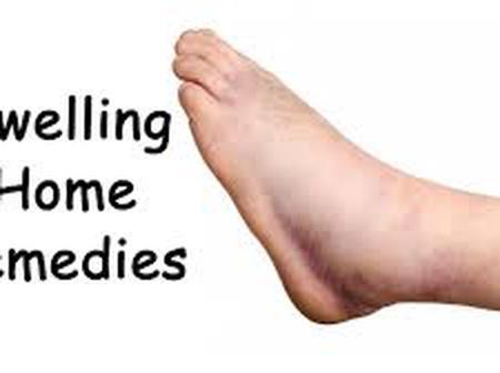 Treatment For Swollen Leg