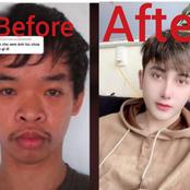 Man Undergoes N6.6m Plastic Surgery Transformation After He Was Denied a Job Because of His Looks