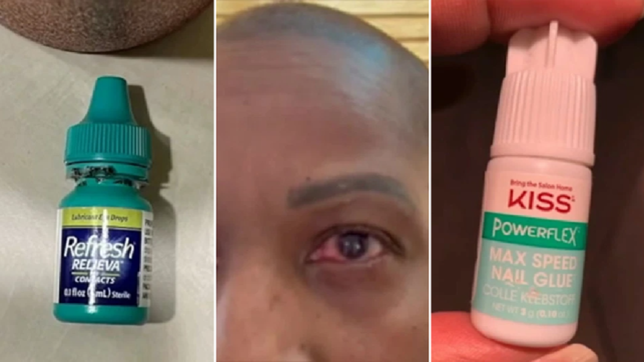 Woman mistakes nail glue for eye drops and seals eyelids shut