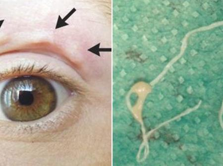 Mysterious Itchy Lump Moves across Woman's Face, turns out to be a Parasitic Worm
