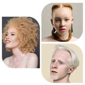 Check Out 20 Beautiful Photos Of Albinos That Will Make You Like Them