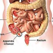 Appendix Disease Kills: If You See Anybody Living With Appendix, This Is What It Actually Means