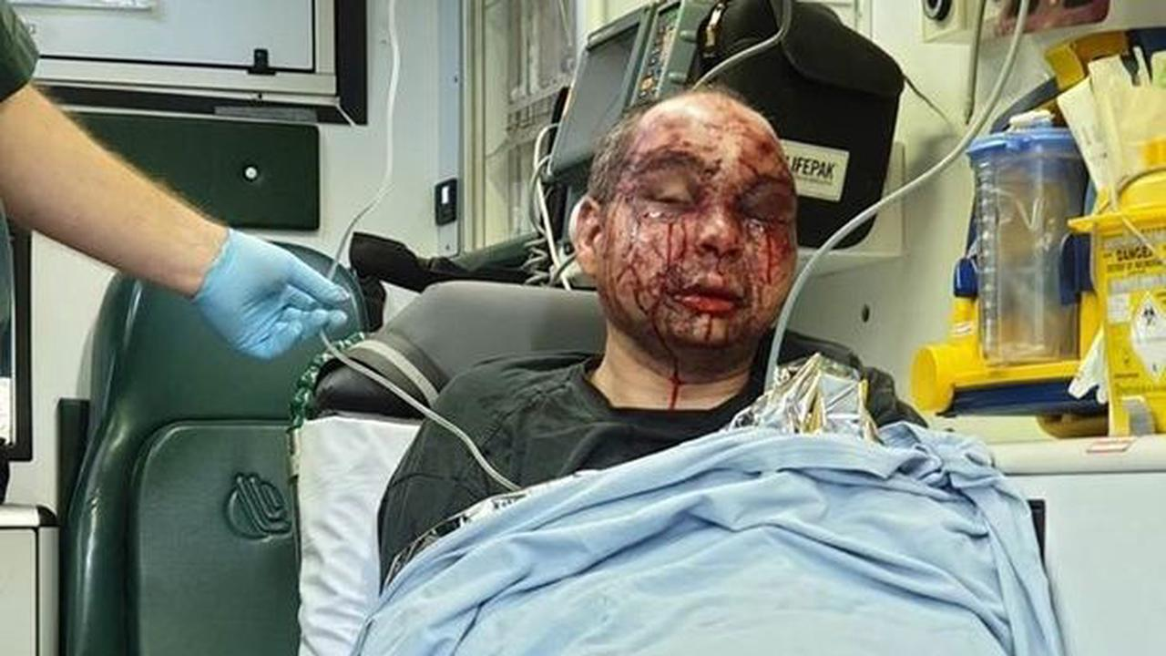 Sickening injuries of man 'lucky to be alive' after attack on walk to work
