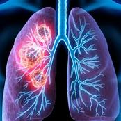 5 Early signs of lung cancer