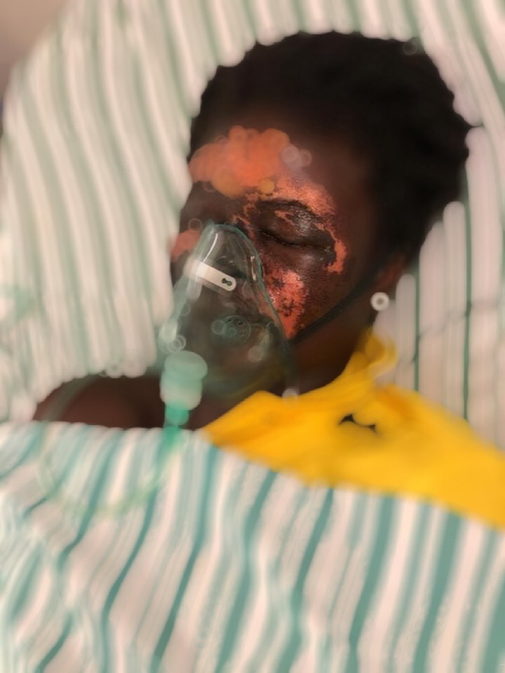 48b3018c606f49b9918246e723584b52?quality=uhq&resize=720 - Sad: Woman In Critical Condition After Her Husband Poured Acid On Her Face (Photos And Video)