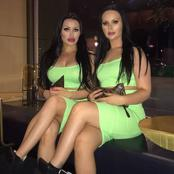 Friendship is sweet, look at friends who went for plastic surgery to be like identical twins