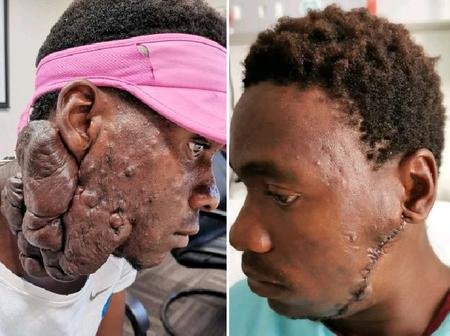 God is good See how young man's life got changed after suffering for years