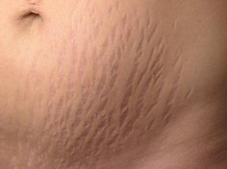 Tips On How To Get Rid Of Stretch Marks.