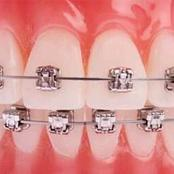 The Cost Of Putting Dental Braces In Kenya