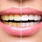 5 natural ways to whiten your teeth at home