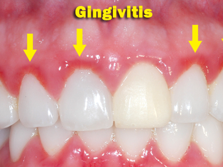Here are the home made remedies to do to get rid of Gingivitis fast at home.