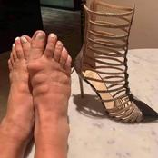 Look What happened to this lady's feet after she wore a high heel shoes