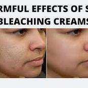 Effects Of Bleaching Creams On The Body