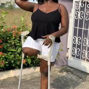 Despite Losing Her One Leg In An Accident, Nollywood Actress Is Still Living Happily (Photos)