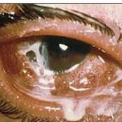 Ever Wondered Why There Is A White Discharge In Your Eyes When Waking Up? Here Are the Causes