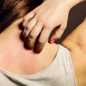 2 Effective Home Remedies for Itchy Skin