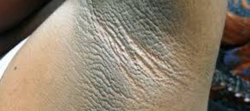 How To Overcome Dark Armpits With Simple Natural Techniques