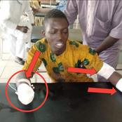 After Man's Hand Was Allegedly Cut Off By Fulani Herdsmen In Kwara State, Check How He Was Treated