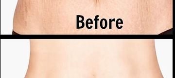 5 Home Remedies For Clearing Stretch Marks in 14 days