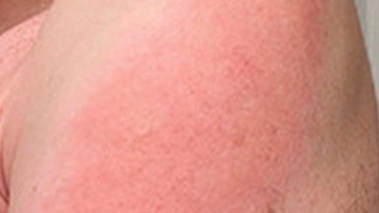 Covid vaccines linked to 4 different skin reactions - from hives to swelling