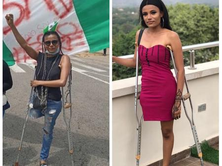 Remember 'Jane' The Lady Nigerians Donated Over 2 Million For? See Beautiful Pictures Of Her.