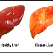 Four things about liver disease