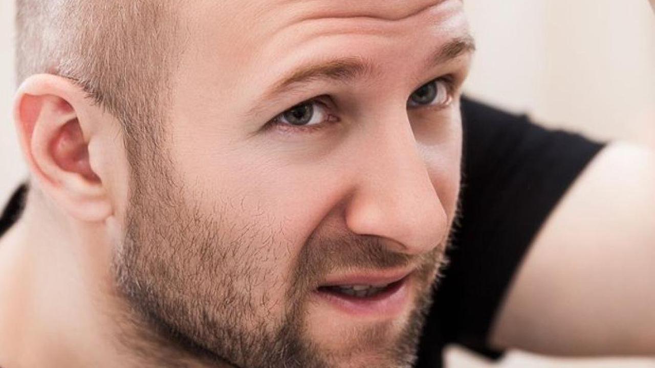 Biofriseur Michael Rogall: Haarausfall: Was sind die Ursachen und wie kann er gestoppt werden?