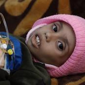 من ٥: ١٦ مليون يمني مهددين بالمجاعة حتى الموت... فاجعة تصنفها الأمم المتحدة بالأسوء عالميا
