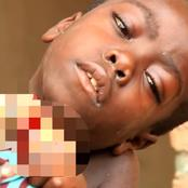 """""""God Have Mercy on Him,"""" Painful Story of a Boy With a Strange Growth on His Neck"""