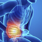 Natural Remedies for Gallstones