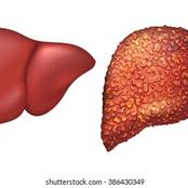 Liver Cirrhosis Kills: Reduce Your Intake Of These 3 Things