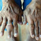 See Reasons Why People Have Swollen Thumbs And Treatment