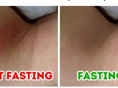 Ramadan Is Coming, Here Are Things That Can Happen to Your Skin if You Fast